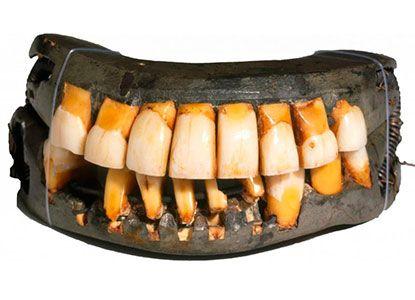 nota protesis washington interna - Resultados exitosos con cerámicas de Noritake