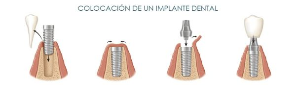 colocacion-implante-dental