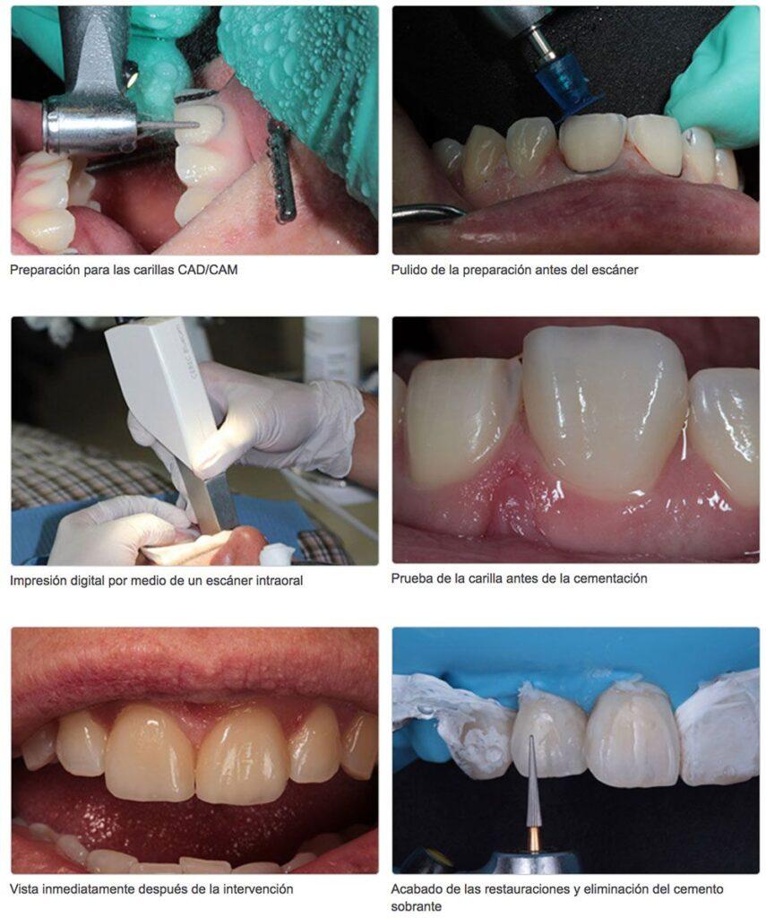 CAD CAM IMPLANTEC 855x1024 - Preparación dental para un tratamiento CAD/CAM